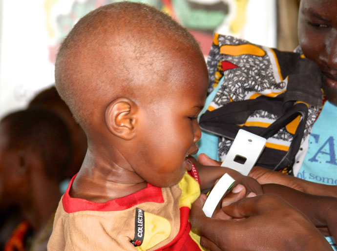 Baby having his arm measured in malnutrition test