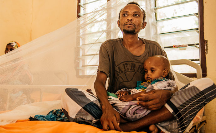 Baare Bule sleeps in the same bed as his daughter Mardo Bule as she receives treatment for severe malnutrition at Luuq Hospital.