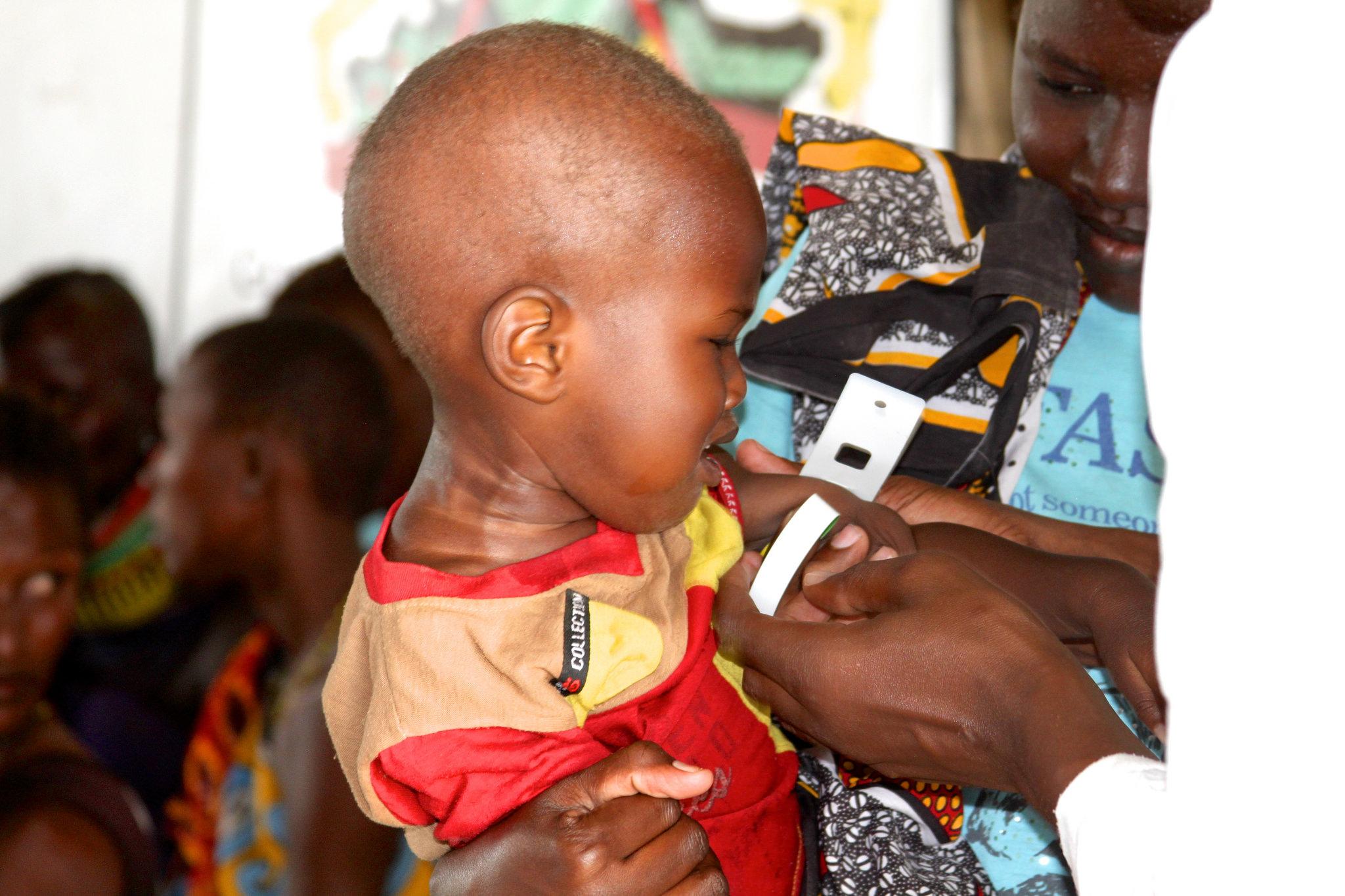 Child at Trócaire feeding centre Turkana